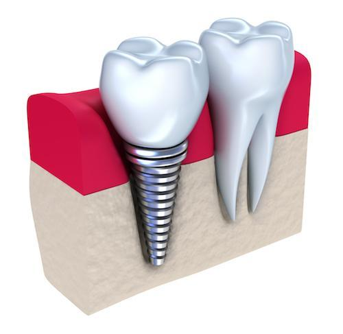 graphic of a dental implant in the gums