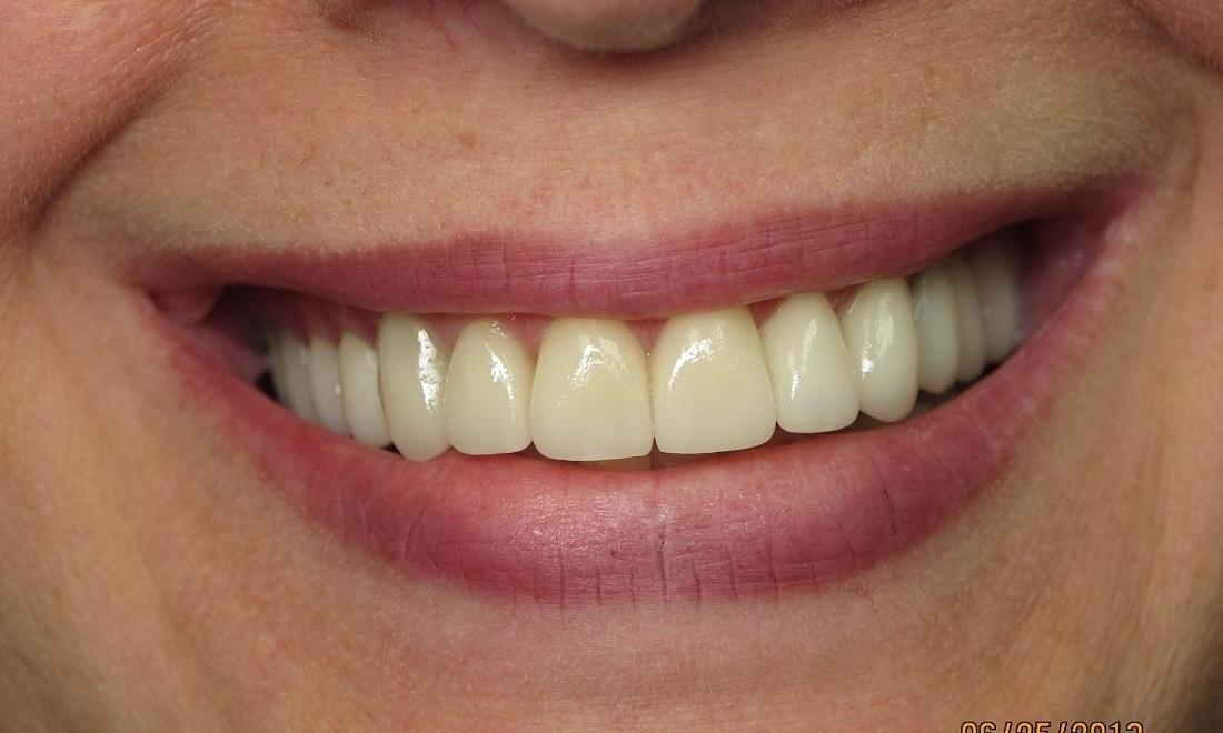 After Photo | Dental Veneers and Teeth Whitening in Carrollwood, FL 33618
