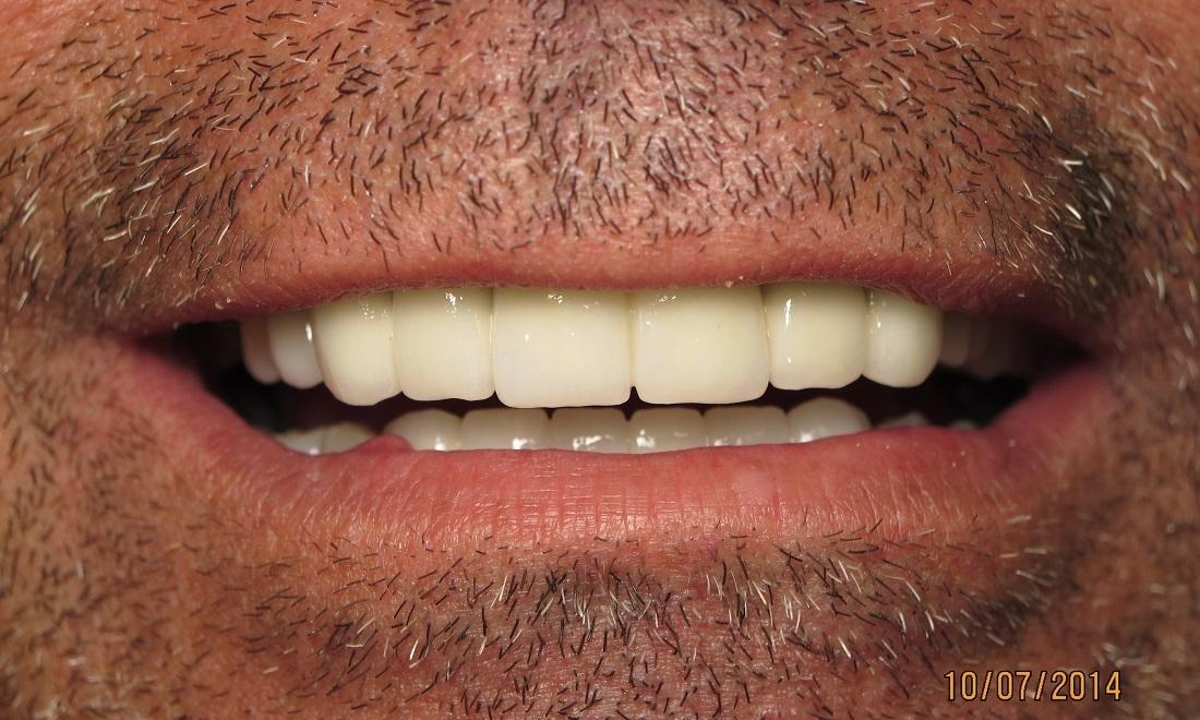 After Photo | Implant Dentures in Carrollwood, FL 33618