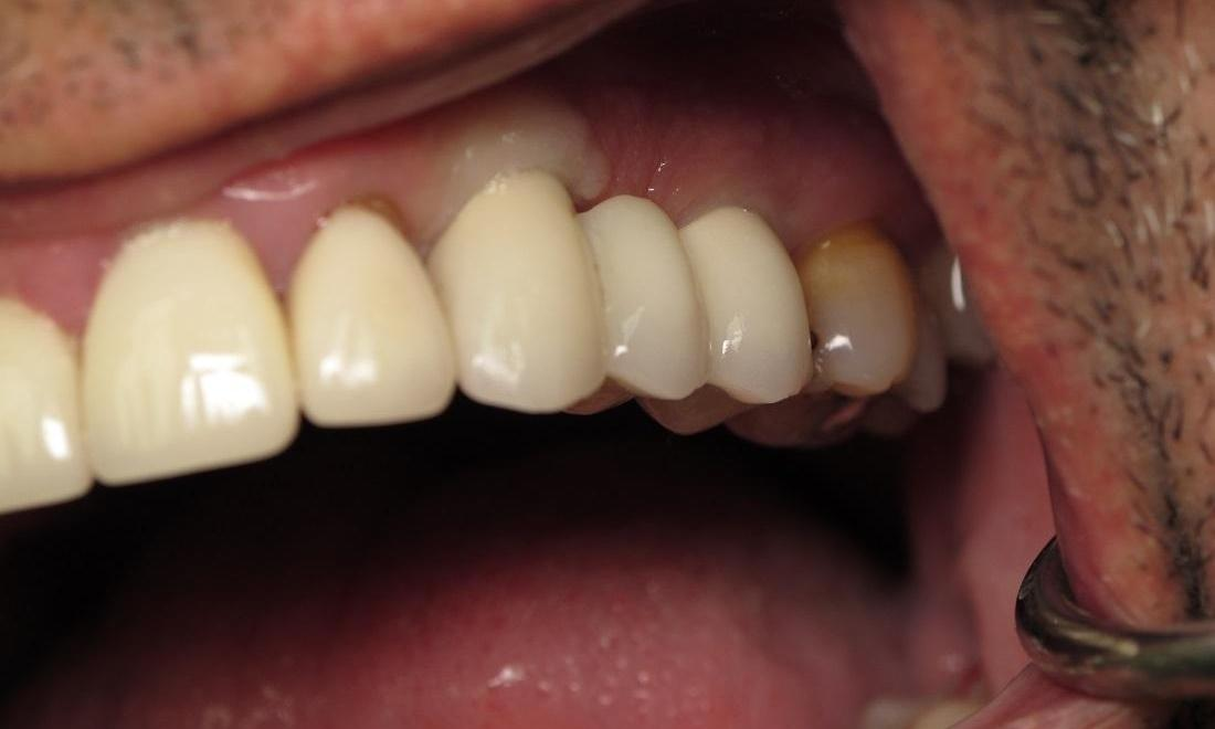 After Photo | Dental Implants in Carrollwood, FL 33618