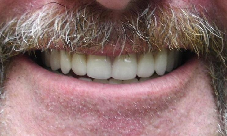 upper and lower straight dentures