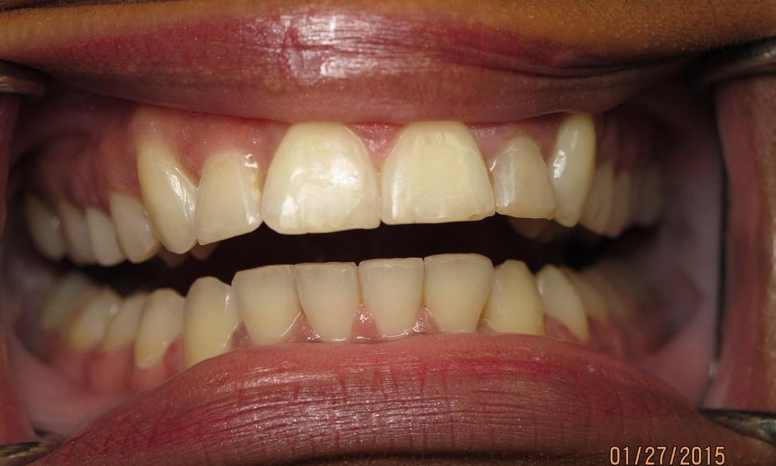 After Photo | Orthodontics in Carrollwood, FL 33618