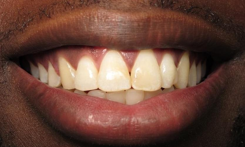 After Photo | Orthodontics in North Tampa, FL 33618