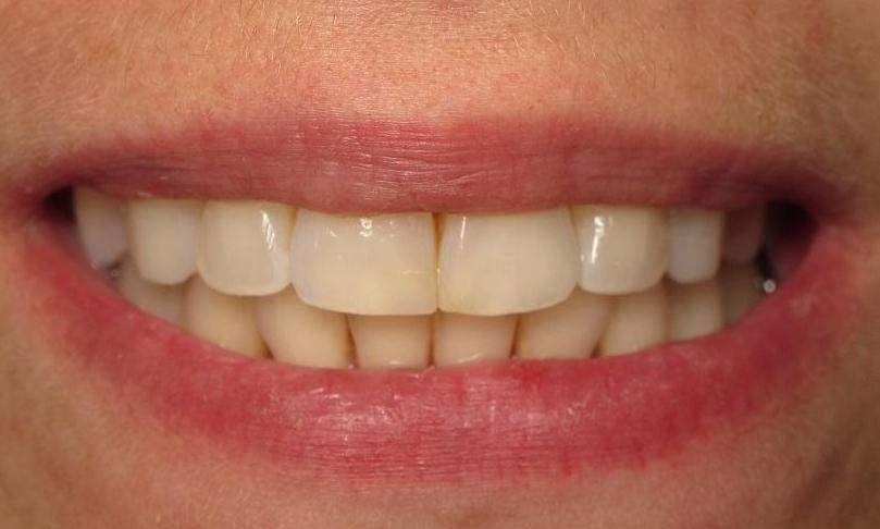 After Photo | Cosmetic Dentistry Carrollwood, FL 33618