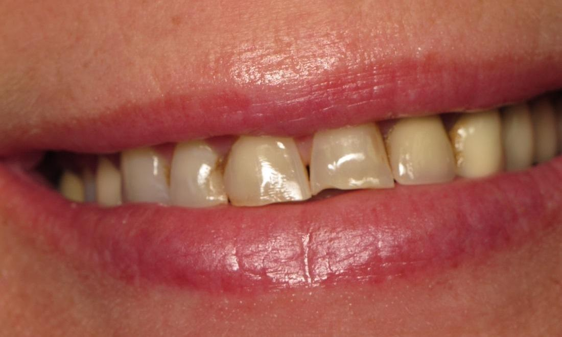 Before Photo | Cosmetic Dentist North Tampa, FL