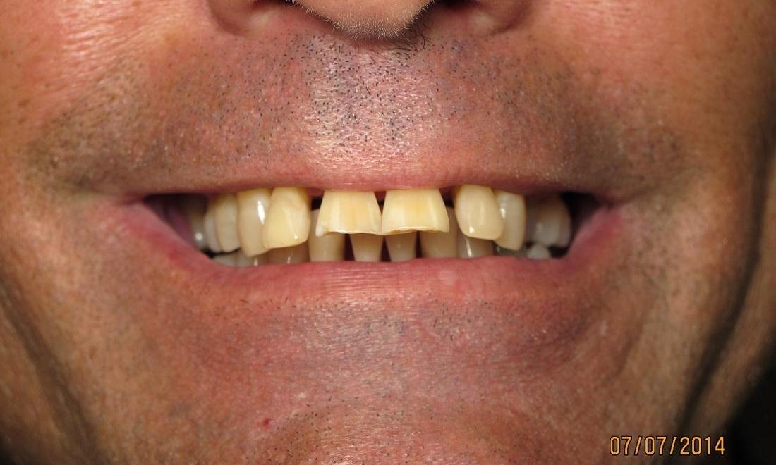 Before Photo | Cosmetic Dentist Royal Palm Beach FL