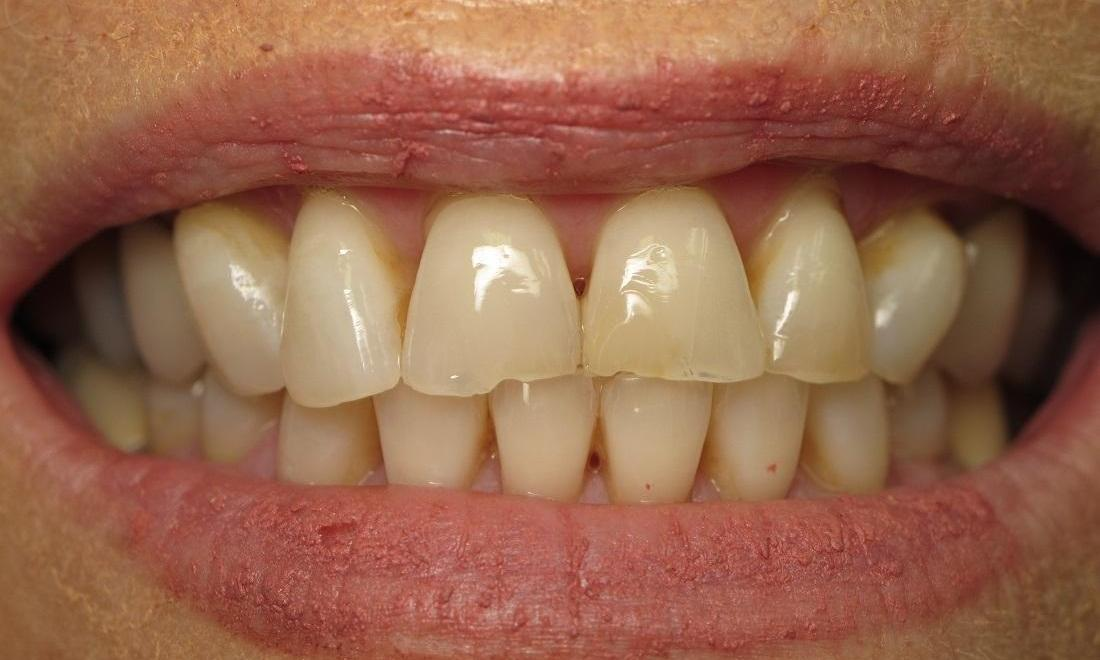 Before Photo | Cosmetic Dentist North Tampa, FL 33618
