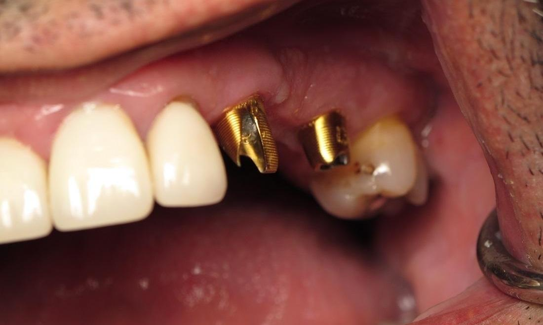 Before Photo | Dental Implants in North Tampa, FL 33618