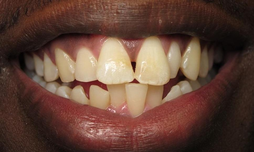 Before Photo | Orthodontics in North Tampa, FL 33618