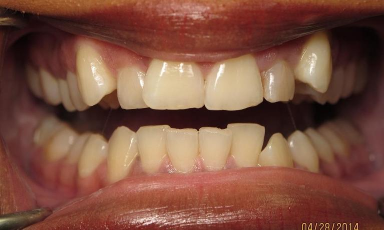 Six-Month-Smiles-Orthodontics-Before-Image