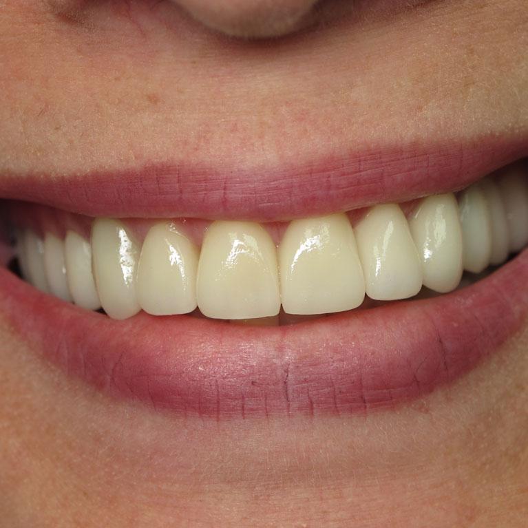 North Tampa Dentistry | (add here) | Image of close up of nice looking teeth